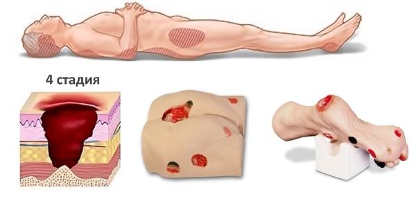 Початкова стадія пролежнів: фото і картинки, як виглядають уражені ділянки шкіри хворих
