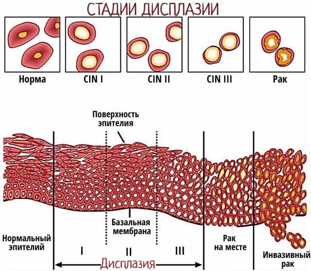 Дисплазія шийки матки - ступеня, причини, методи лікування