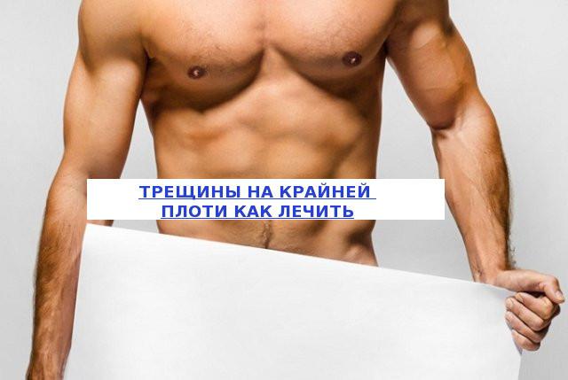 Тріщини на крайньої плоті у чоловіків: причини і лікування ранки на голівці