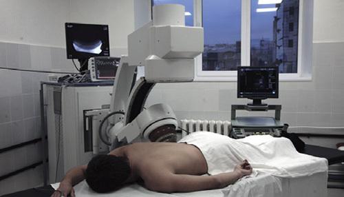 Камені в сечоводі у чоловіків: симптоми, лікування, наслідки і ускладнення